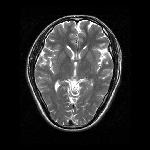 医学图像压缩感知matlab